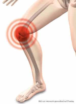 Symptome und Ursachen: Arthrose